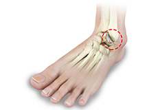 Foot and Ankle Arthritis