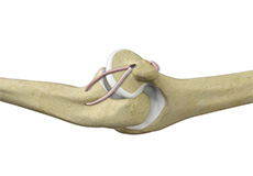 Lateral Ulnar Collateral Ligament Injuries (Elbow)